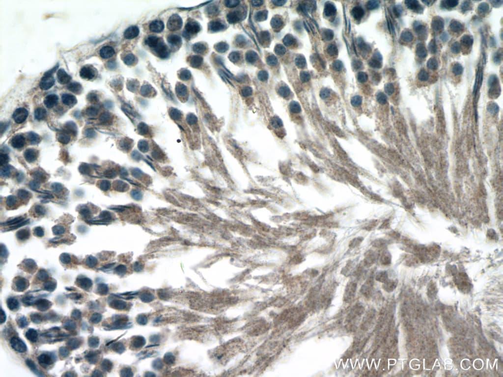 Inhibin beta B Antibody in Immunohistochemistry (Paraffin) (IHC (P))