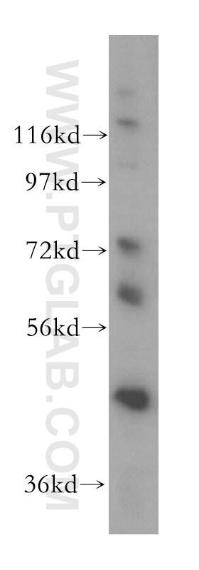 DDX43 Antibody in Western Blot (WB)