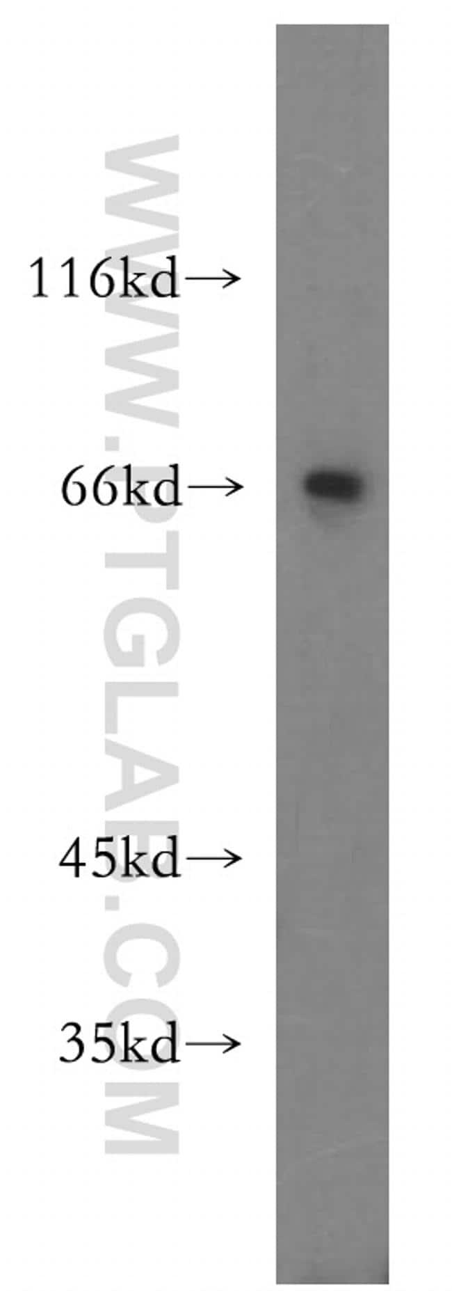 MTMR15 Antibody in Western Blot (WB)
