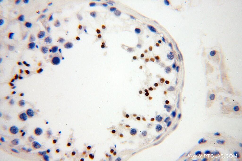 HEMGN Antibody in Immunohistochemistry (Paraffin) (IHC (P))