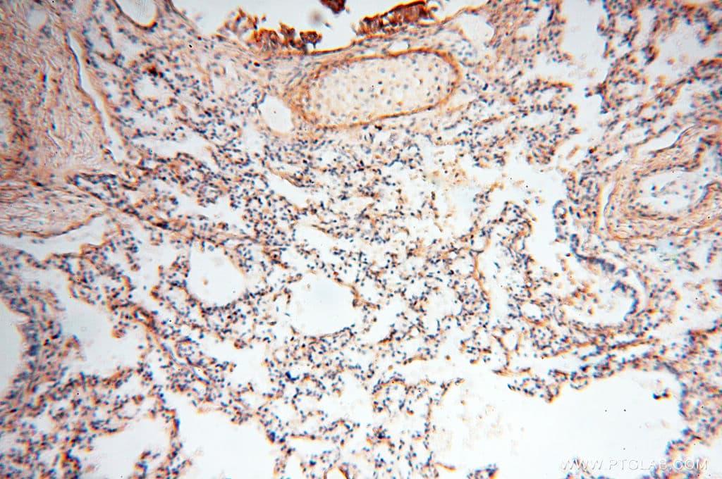 MFAP4 Antibody in Immunohistochemistry (Paraffin) (IHC (P))