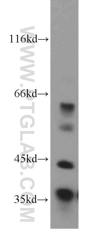 MFAP4 Antibody in Western Blot (WB)