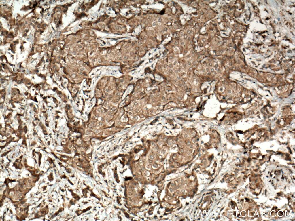 JAK2 Antibody in Immunohistochemistry (Paraffin) (IHC (P))