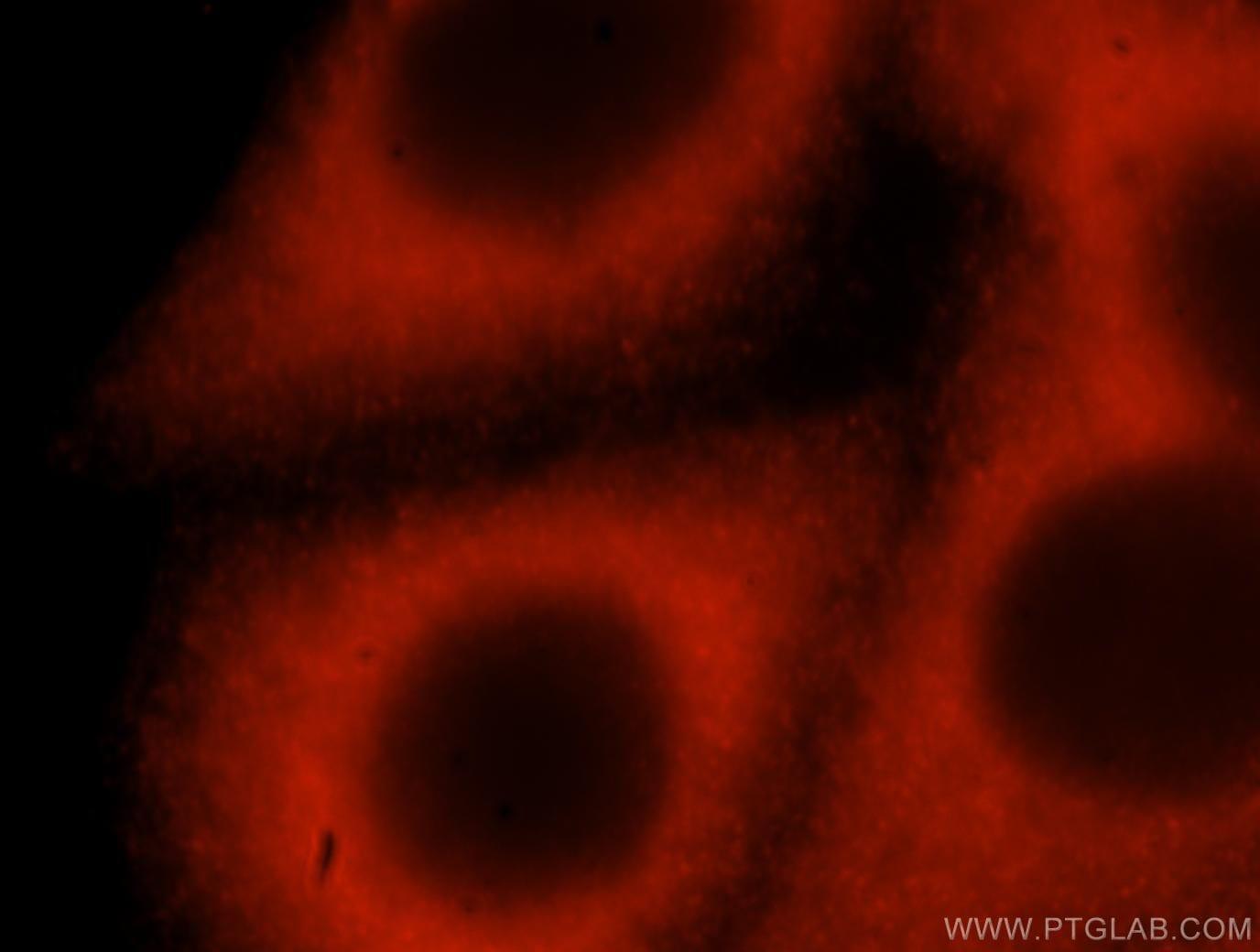 ABL2 Antibody in Immunofluorescence (IF)