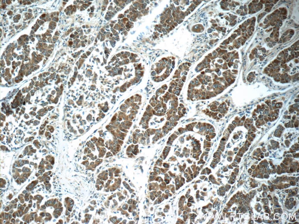 ABL2 Antibody in Immunohistochemistry (Paraffin) (IHC (P))