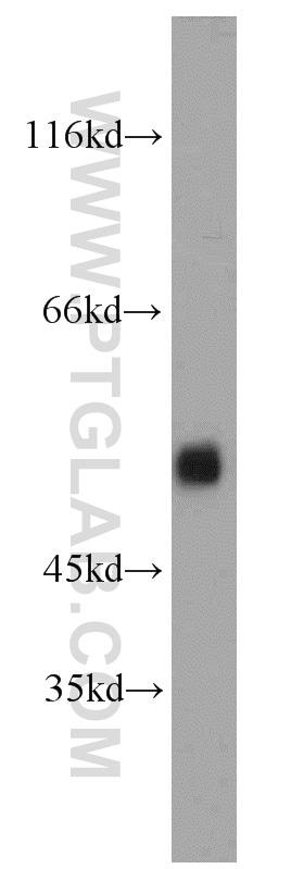 ARL13B Antibody in Western Blot (WB)