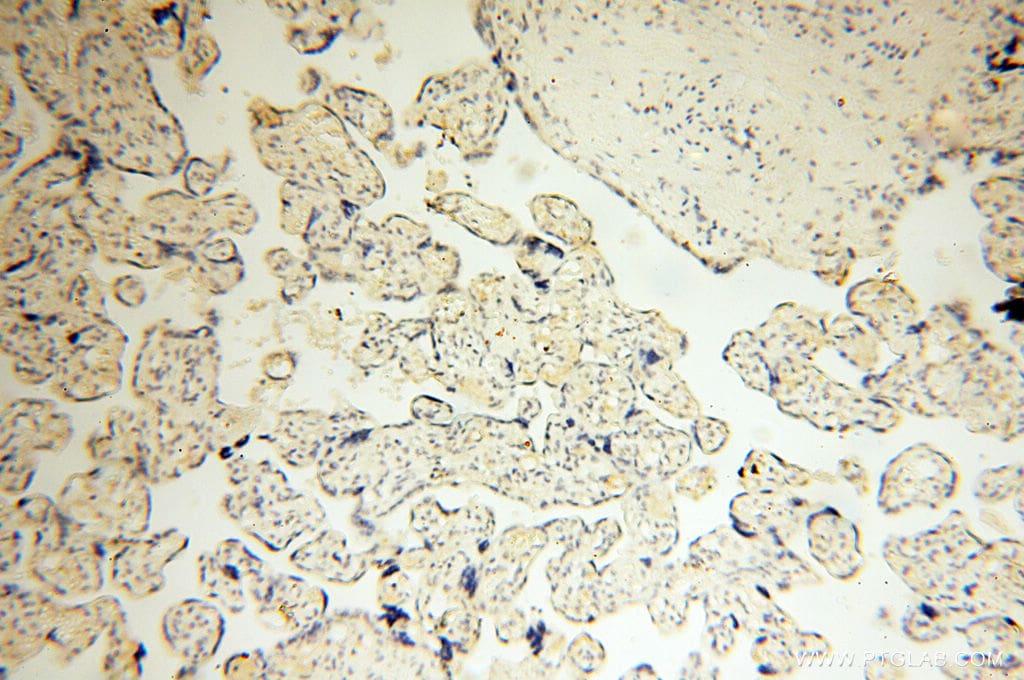 SMARCC1 Antibody in Immunohistochemistry (Paraffin) (IHC (P))