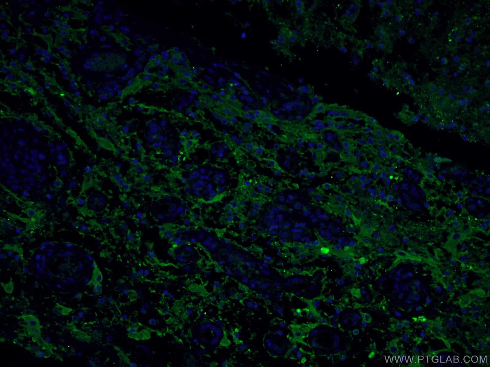 Synaptophysin Antibody in Immunofluorescence (IF)