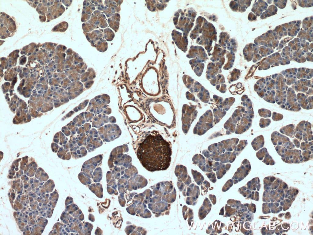 Synaptophysin Antibody in Immunohistochemistry (Paraffin) (IHC (P))