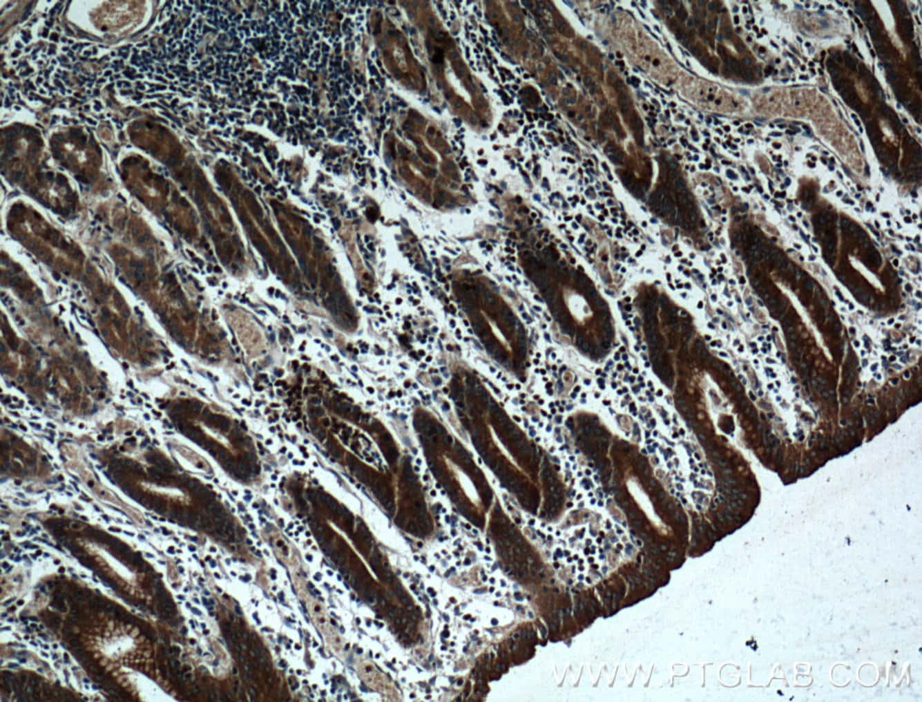 RAB27A Antibody in Immunohistochemistry (Paraffin) (IHC (P))