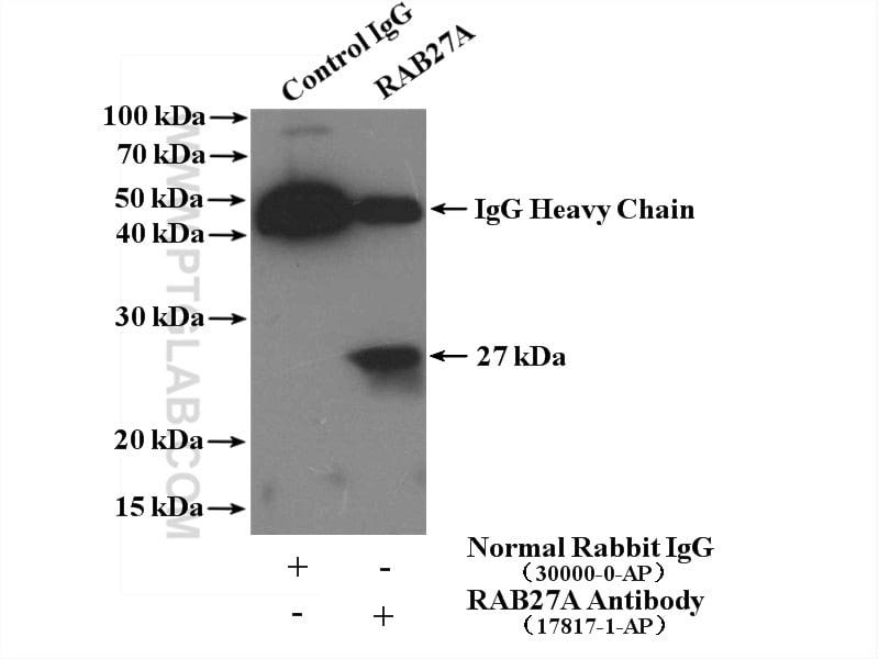 RAB27A Antibody in Immunoprecipitation (IP)