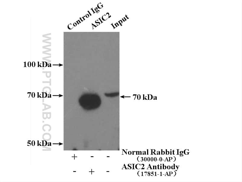 ASIC2 Antibody in Immunoprecipitation (IP)
