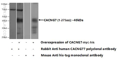 CACNG7 Antibody in Western Blot (WB)
