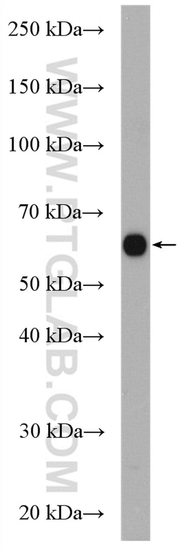 MGAT3 Antibody in Western Blot (WB)