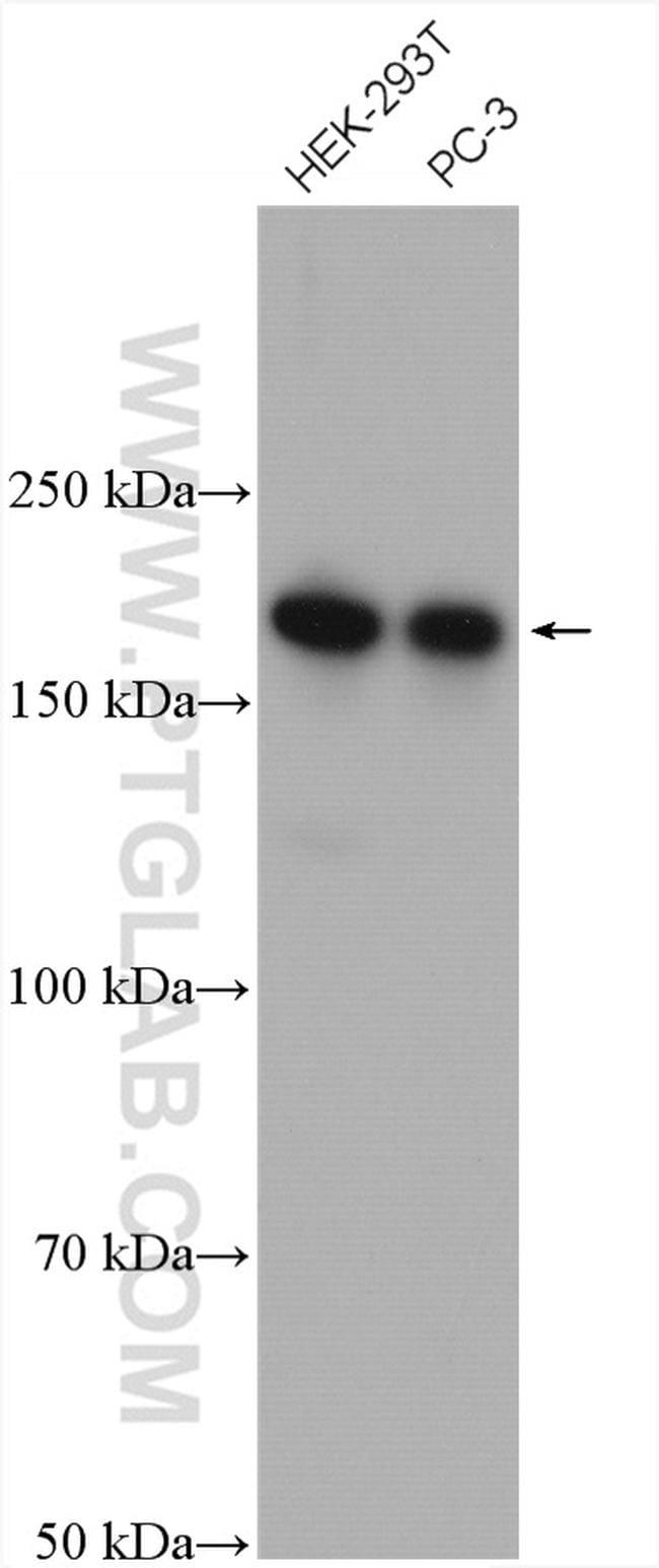 CAMSAP2 Antibody in Western Blot (WB)