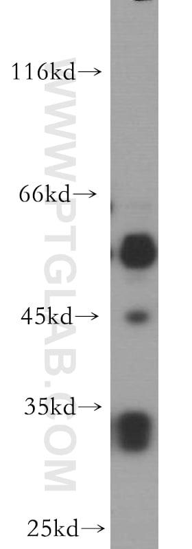 PTPRR Antibody in Western Blot (WB)
