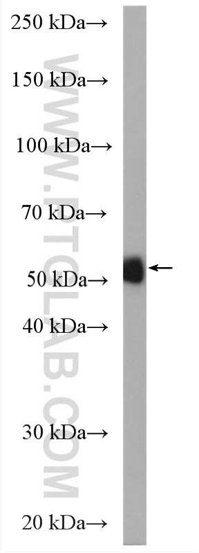 Neurokinin-1 receptor Antibody in Western Blot (WB)