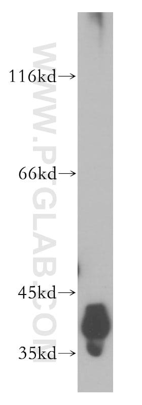 DNA polymerase beta Antibody in Western Blot (WB)