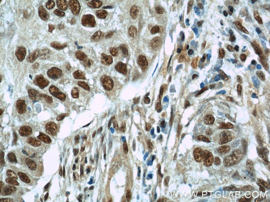 SART3 Antibody in Immunohistochemistry (Paraffin) (IHC (P))