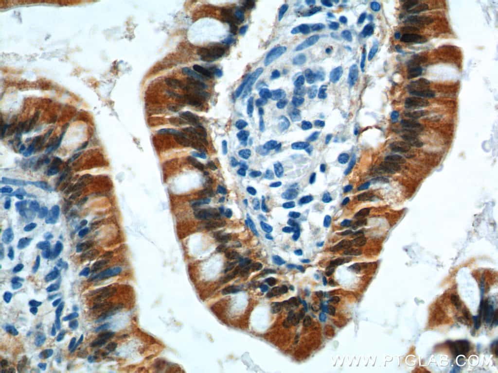 GIP Antibody in Immunohistochemistry (Paraffin) (IHC (P))