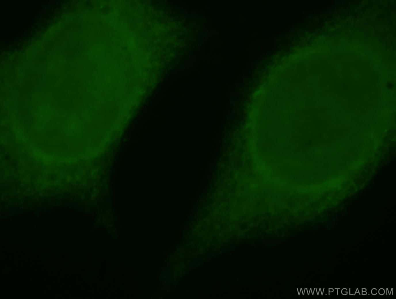 SERPINB13 Antibody in Immunofluorescence (IF)