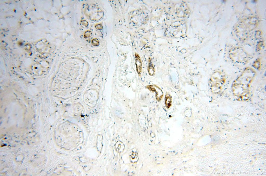 SGCG Antibody in Immunohistochemistry (Paraffin) (IHC (P))