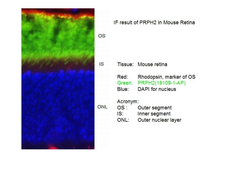 PRPH2 Antibody in Immunofluorescence (IF)