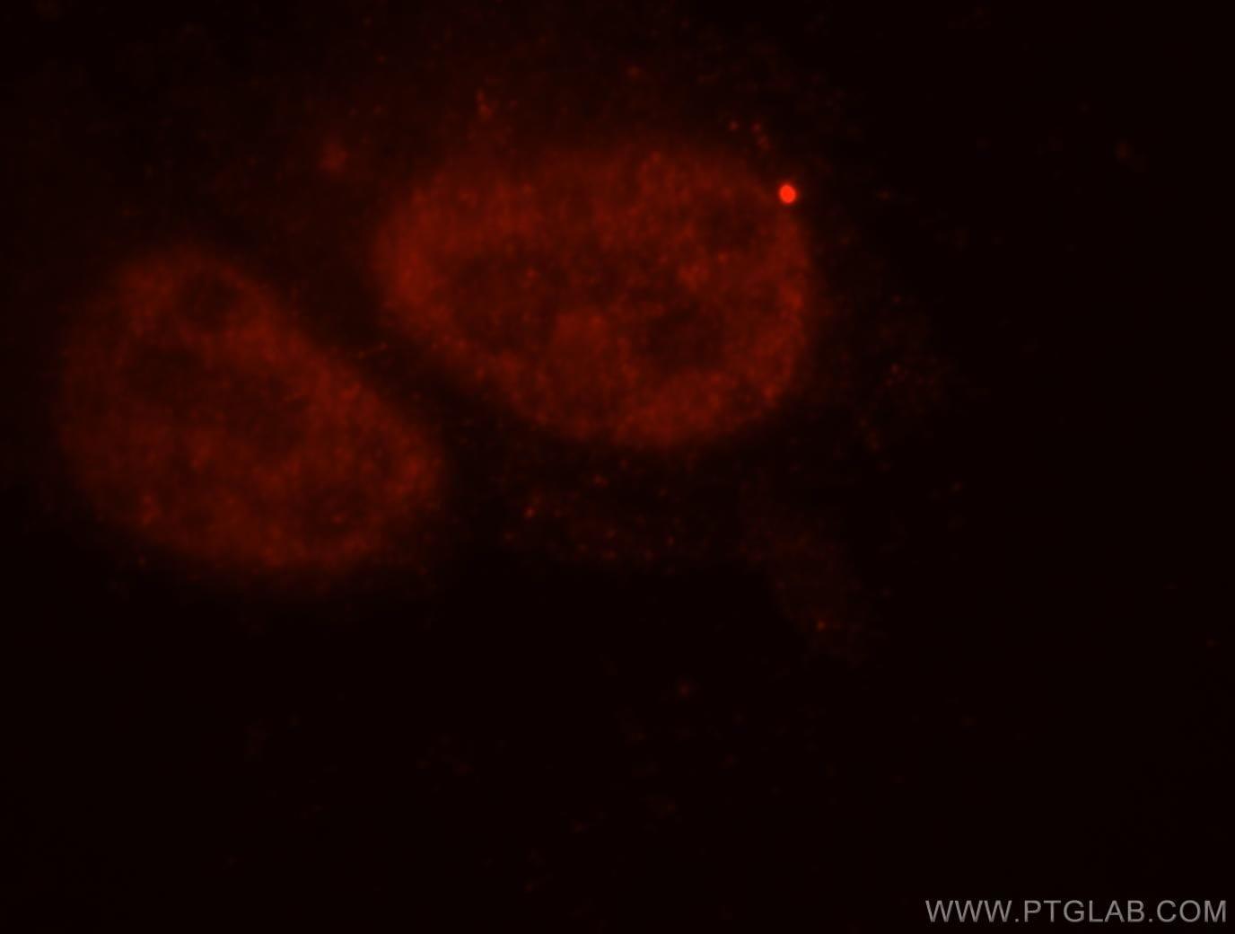 importin alpha 5 Antibody in Immunofluorescence (IF)