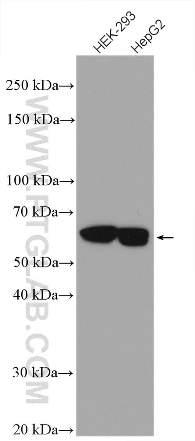 importin alpha 5 Antibody in Western Blot (WB)
