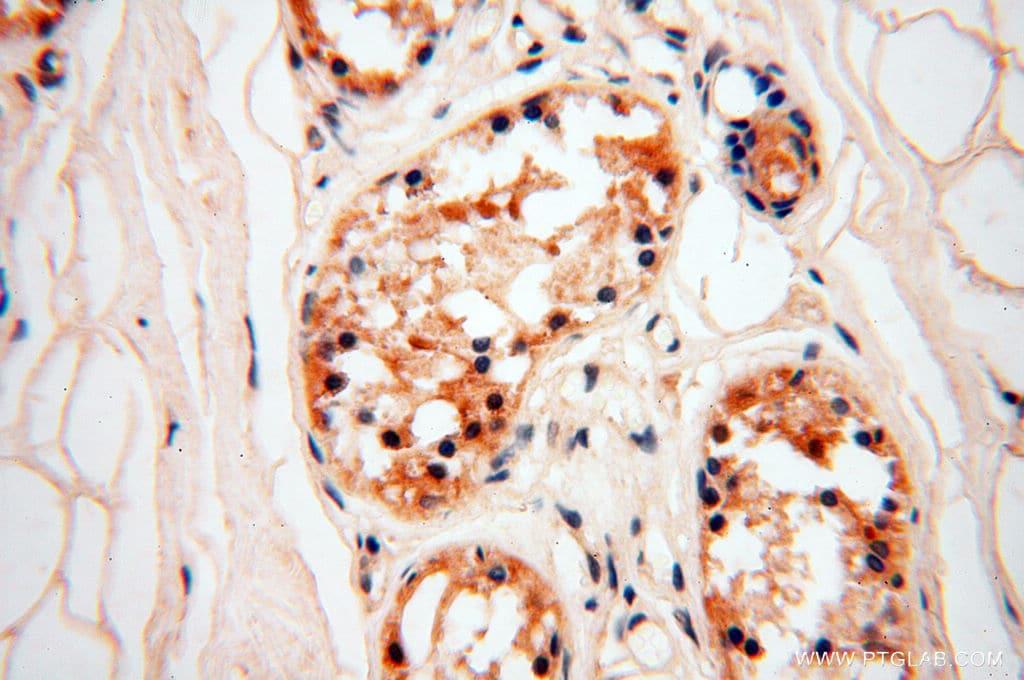 ZNF174 Antibody in Immunohistochemistry (Paraffin) (IHC (P))