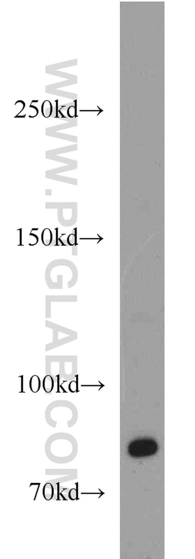 TEM1 Antibody in Western Blot (WB)