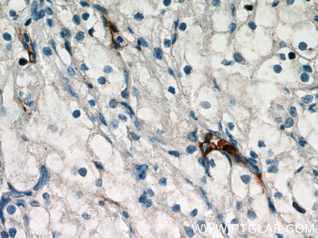 TEM1 Antibody in Immunohistochemistry (Paraffin) (IHC (P))