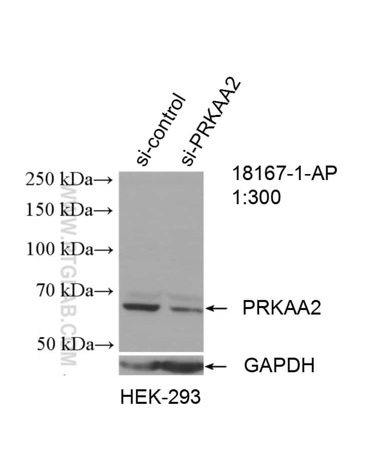 AMPK alpha 2 Antibody in Western Blot (WB)