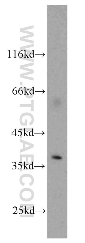 AIP/ARA9 Antibody in Western Blot (WB)