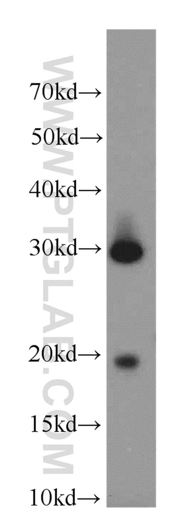 CST8 Antibody in Western Blot (WB)
