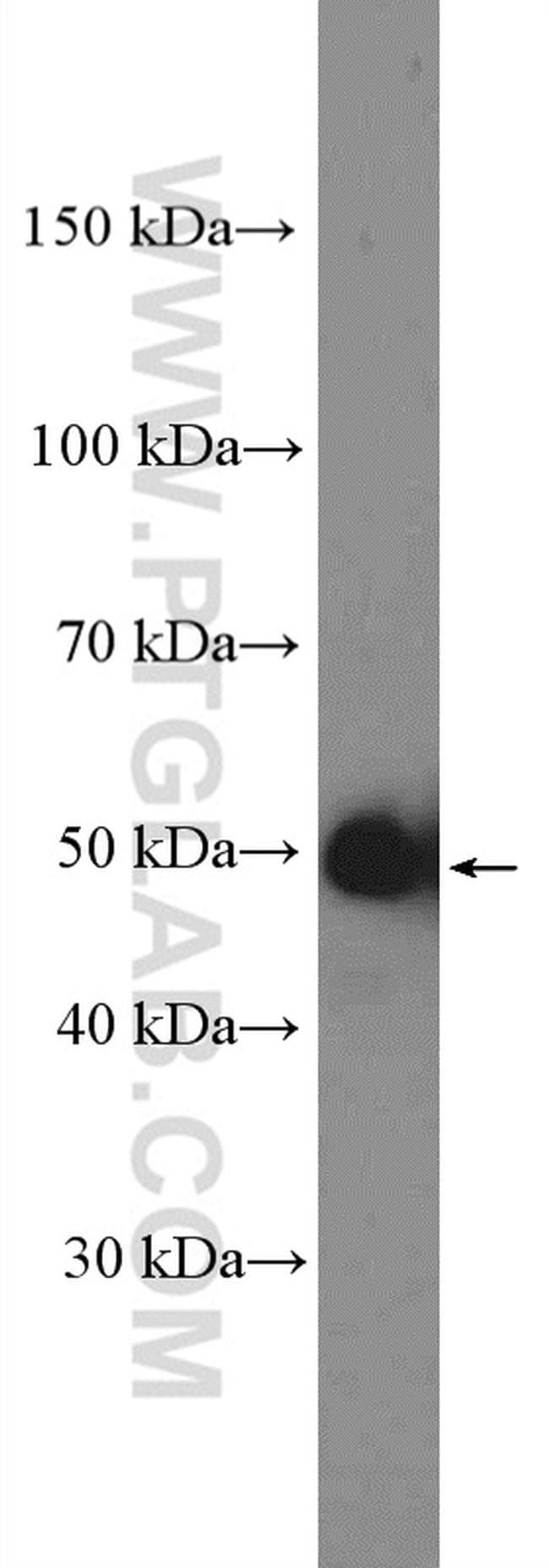 Cyclin A2 Antibody in Western Blot (WB)