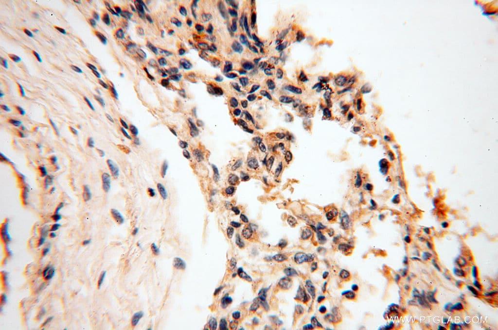 RPS9 Antibody in Immunohistochemistry (Paraffin) (IHC (P))
