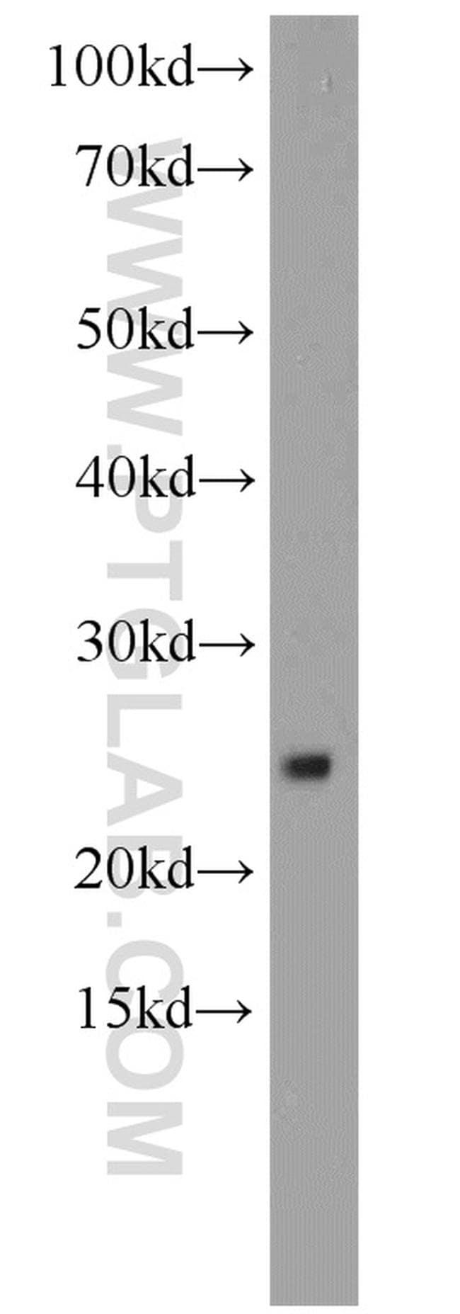 RPS9 Antibody in Western Blot (WB)