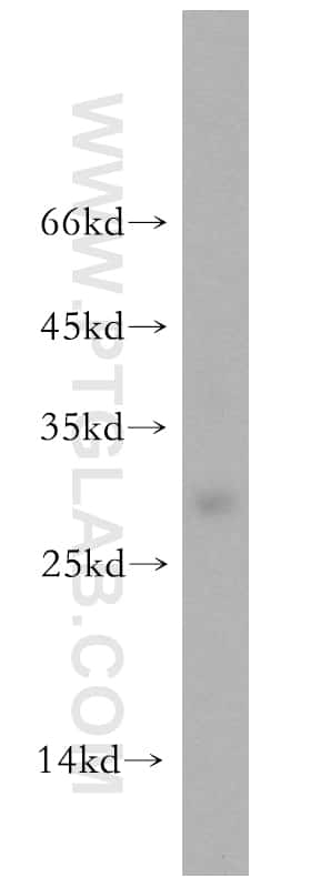 UBE2S Antibody in Western Blot (WB)