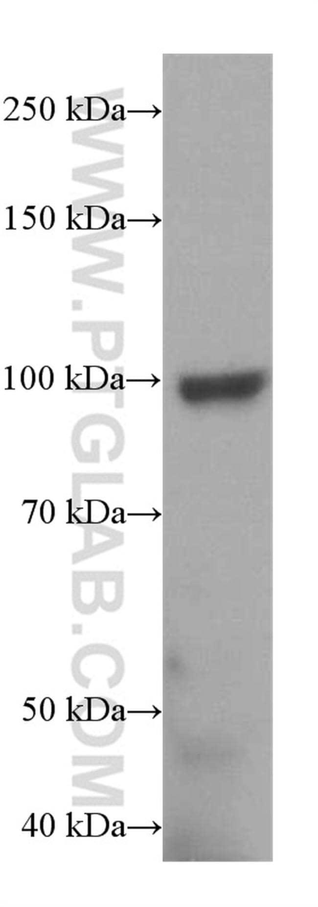 TRPC6 Antibody in Western Blot (WB)