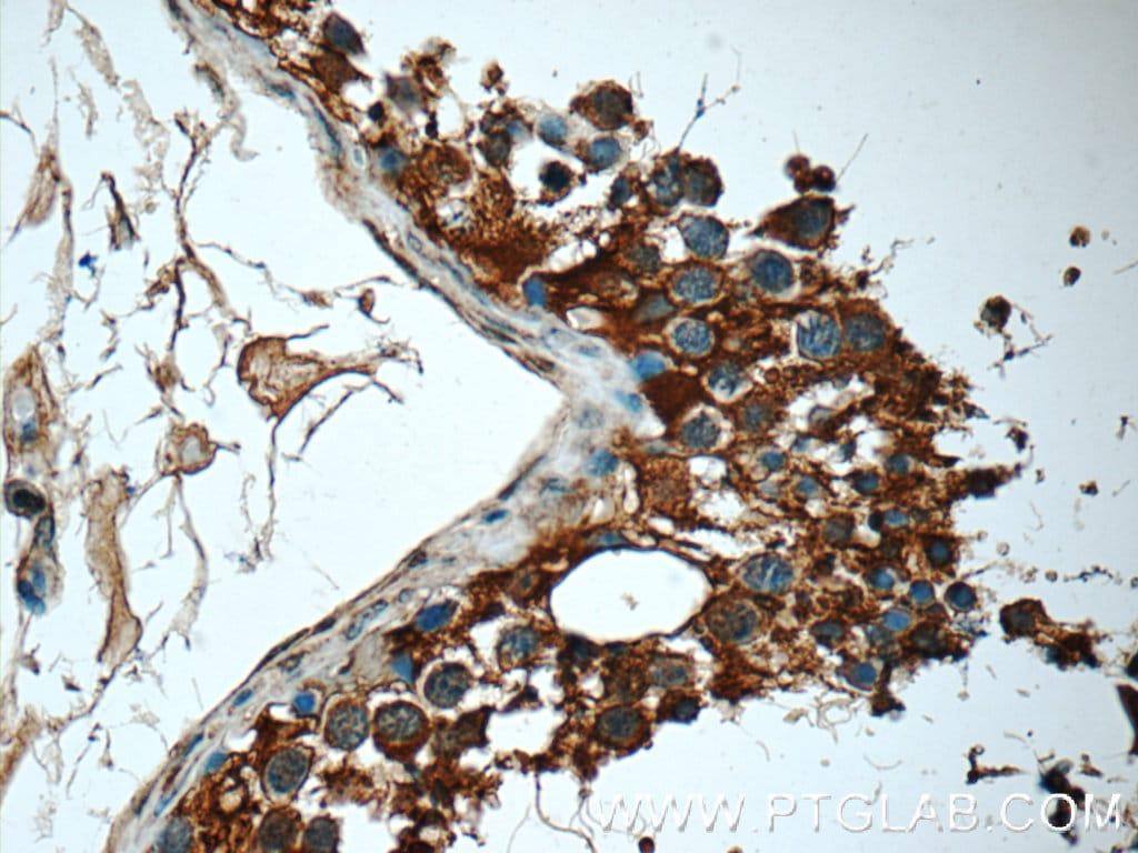 MMP28 Antibody in Immunohistochemistry (Paraffin) (IHC (P))