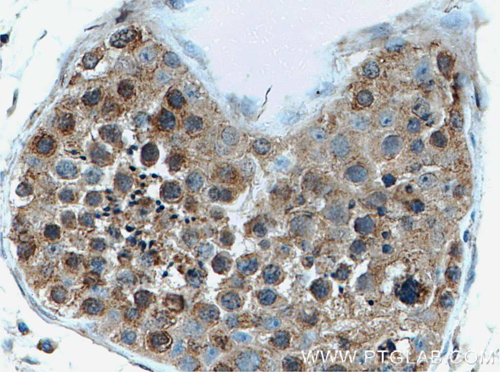 EIF2AK2/PKR Antibody in Immunohistochemistry (Paraffin) (IHC (P))