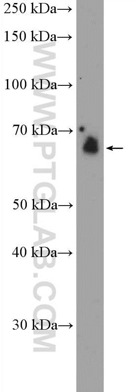 EIF2AK2/PKR Antibody in Western Blot (WB)