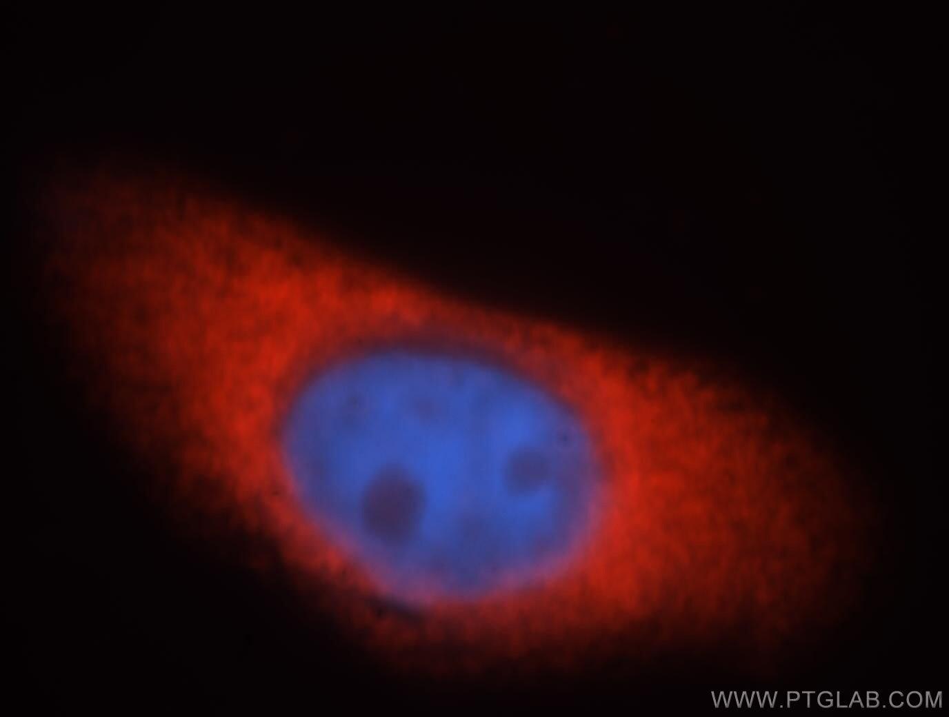 EIF2AK2/PKR Antibody in Immunofluorescence (IF)