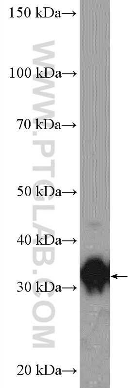AKR1B10 Antibody in Western Blot (WB)
