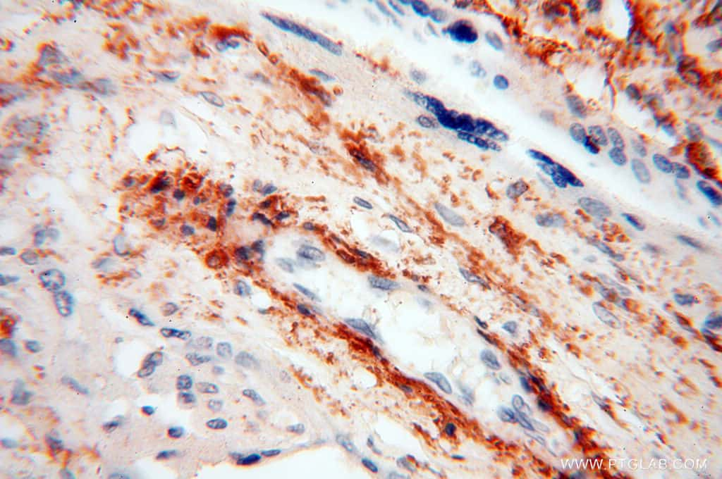 STRAP Antibody in Immunohistochemistry (Paraffin) (IHC (P))
