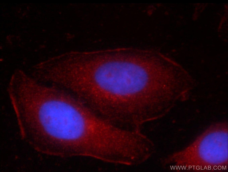 HRAS Antibody in Immunofluorescence (IF)