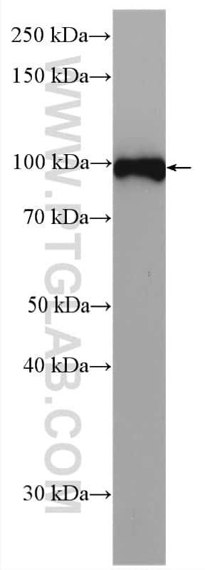 Integrin beta-3 Antibody in Western Blot (WB)