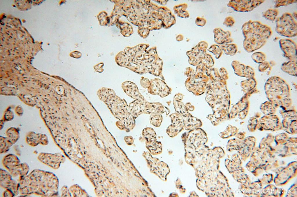 MAD1 Antibody in Immunohistochemistry (Paraffin) (IHC (P))