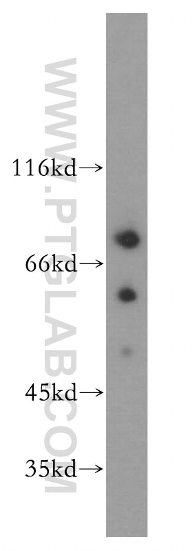 DEAF1 Antibody in Western Blot (WB)